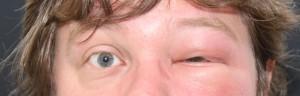 geschwollenes Auge nach Bienenstich